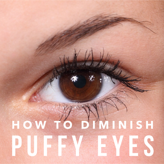 How to diminish puffy eyes